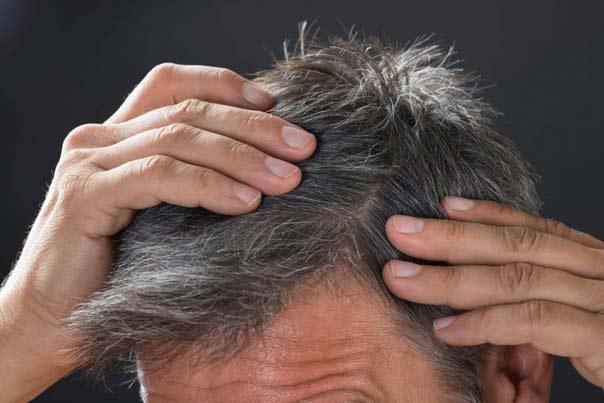 سلامت مو، درمان سفیدی مو